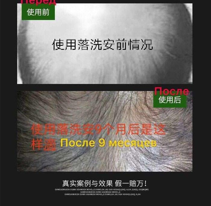 Шампунь лечебный от выпадения и для роста волос с гарантией это не Начот!