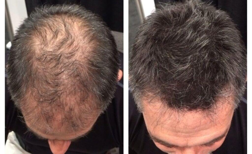 Сaboki – загуститель для волос, который маскирует проблемные места, бл: Сaboki – загуститель для волос, который маскирует проблемные места, бл