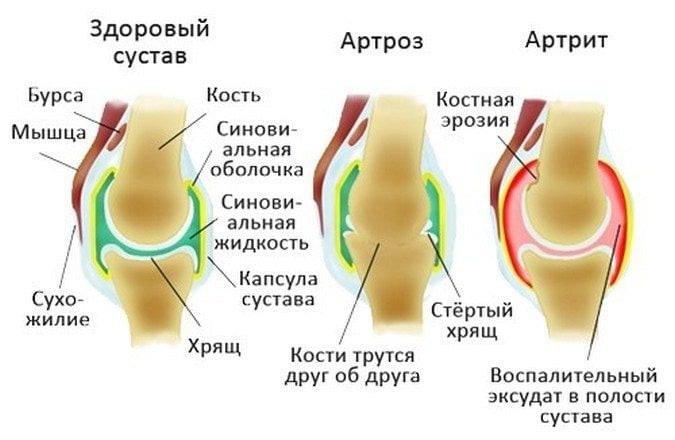 Лечение остеохондроза позвоночника,. Photo 1