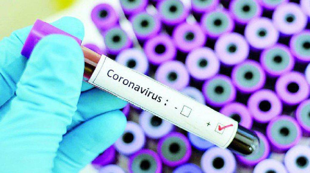 Экспресс тест определения коронавируса за 15 мин
