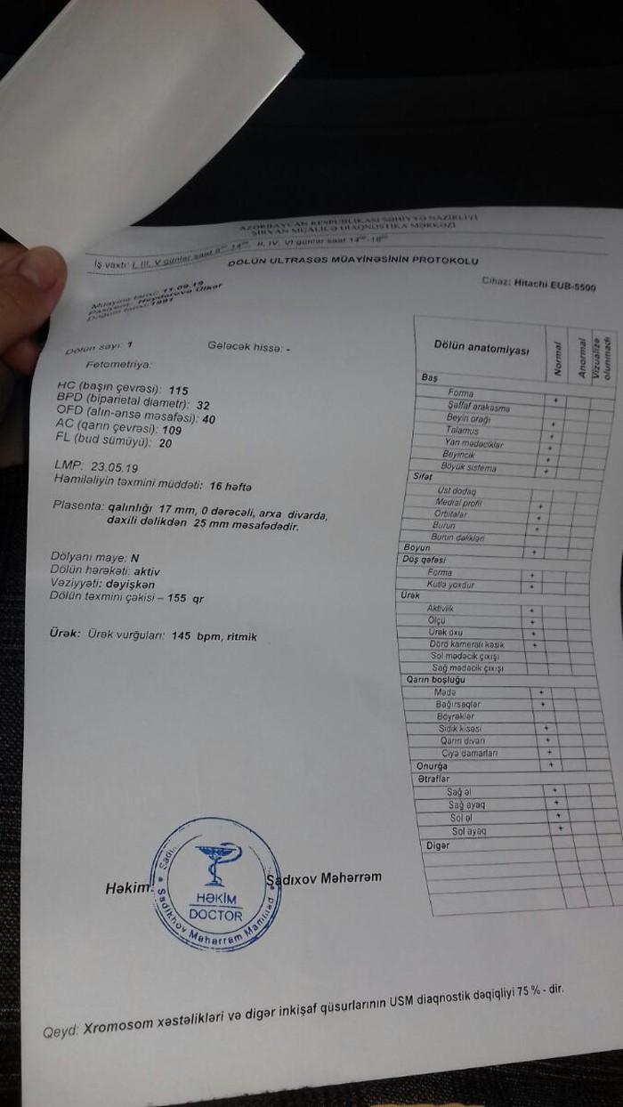 LG kondisoneri işlekdi 80 kvm. Photo 5