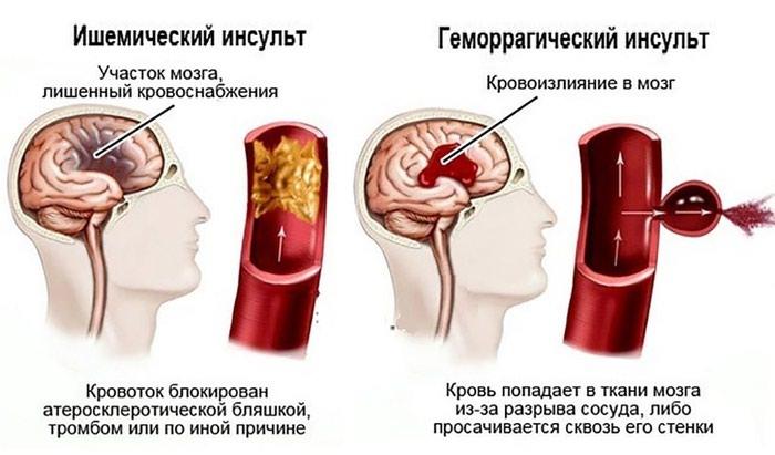 Лечение последствий инсульта и в Душанбе